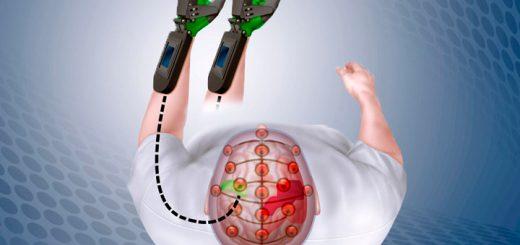 Изобретение способное помочь людям с параличом, после инсульта