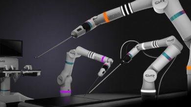 Versius – маленький робот с большими возможностями.