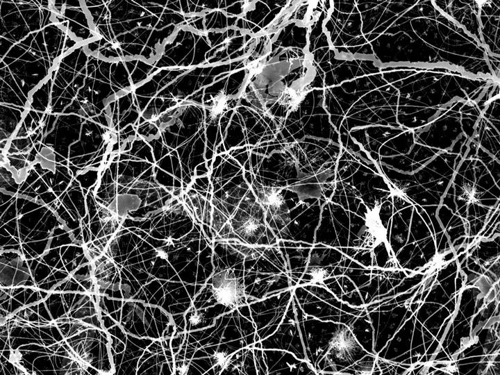 Сеть серебряных проводов, как аналог мозга 2