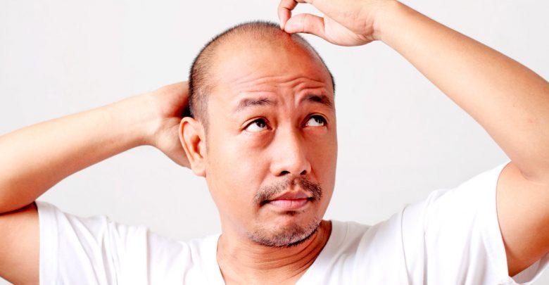 iPhone X способствует… выпадению волос!