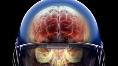 Впервые провели наблюдение за тем, как умирает мозг человека